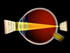 olvasóasztal a látáshoz vissza lehet-e állítani a látást testmozgással