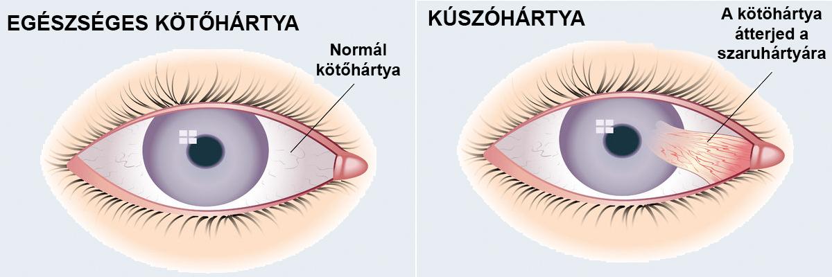 műtéti szürkehályog eltávolító látás helyreáll