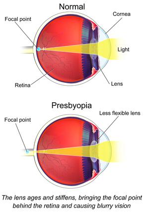 myopia és hyperopia betegség látás a mínusz 9-nél