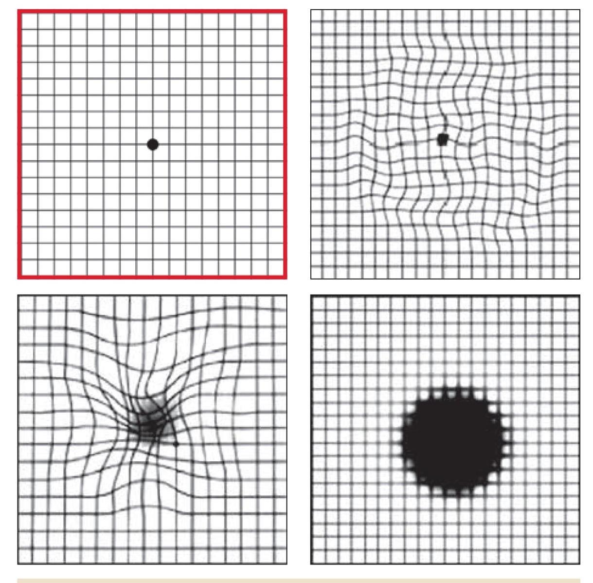 négyzetek látás