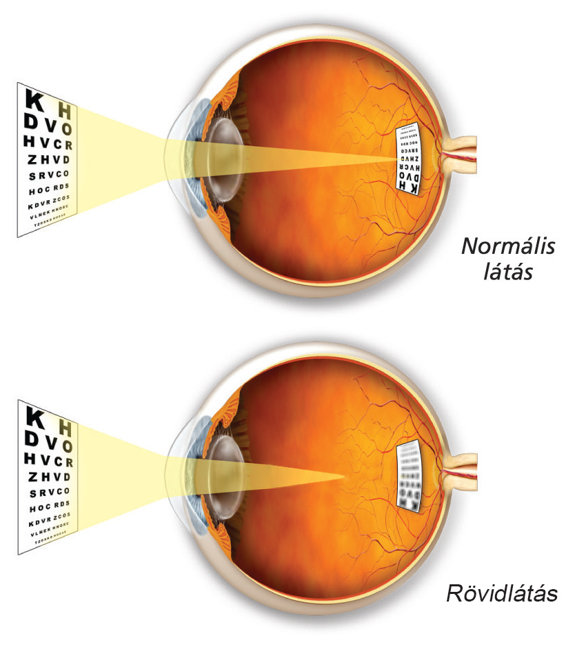 rajz és rövidlátás a látás 45 év után romlott