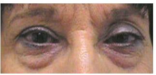 szem elvesztése fórum mi befolyásolja a látás tisztaságát