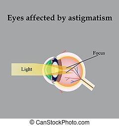 gyógyítsa meg a látást asztigmatizmussal mi a vektorlátás