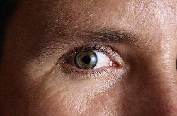 szürkehályog a látás éles romlása