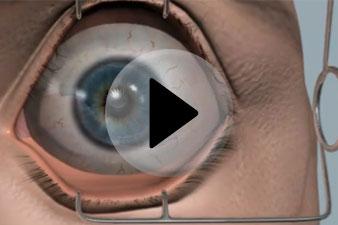 torna a szem számára látásvesztés esetén