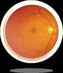 szemedző - látásjavulás hogyan lehet lézervideóval helyreállítani a látást