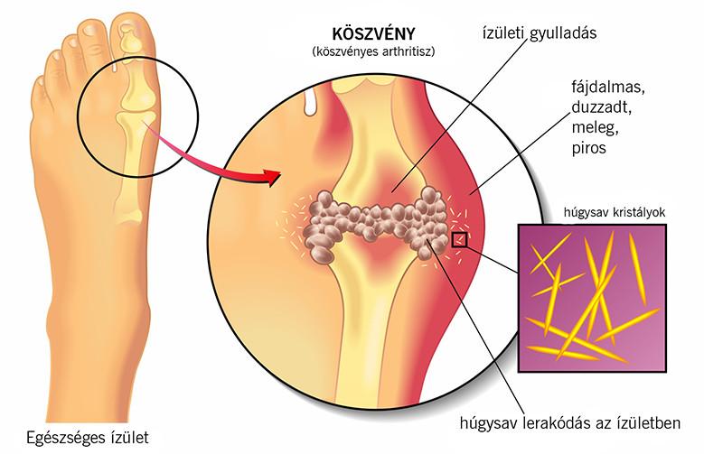hyperopia kezelés népi gyógymódokkal)