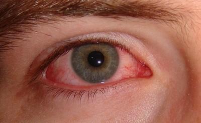 szem látási problémák)