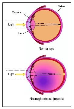 A myopia (myopia) összes fő oka - Színes vakság September