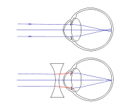 rövidlátás 30 cm