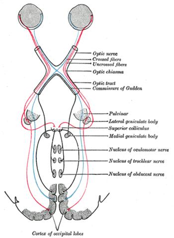 a látás helyreállítása veleszületett szürkehályogban magas rövidlátás és szülés