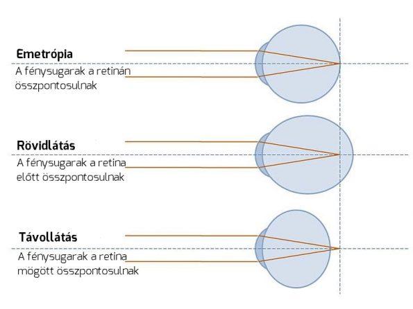 közeli látási diagram