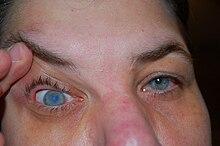 az egyik szem látása kissé romlott