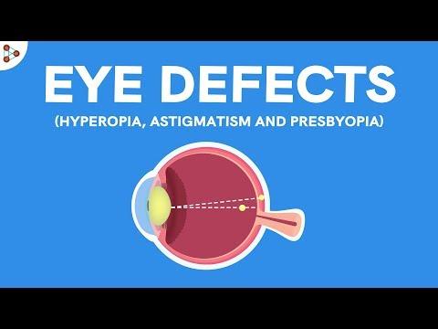 Amblyopia szemek