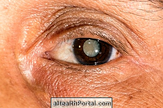 Látás helyreállítása akupunktúrával, Gyakorlati szám 1. Torna a szem számára