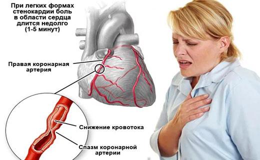 Hepatosis a májban - tünetek és kezelés, beleértve a máj zsíros hepatosisát - Hepatomegalia