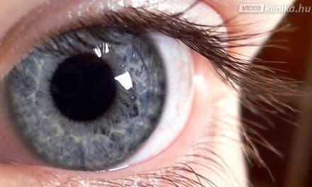 % látásvideó-helyreállítás
