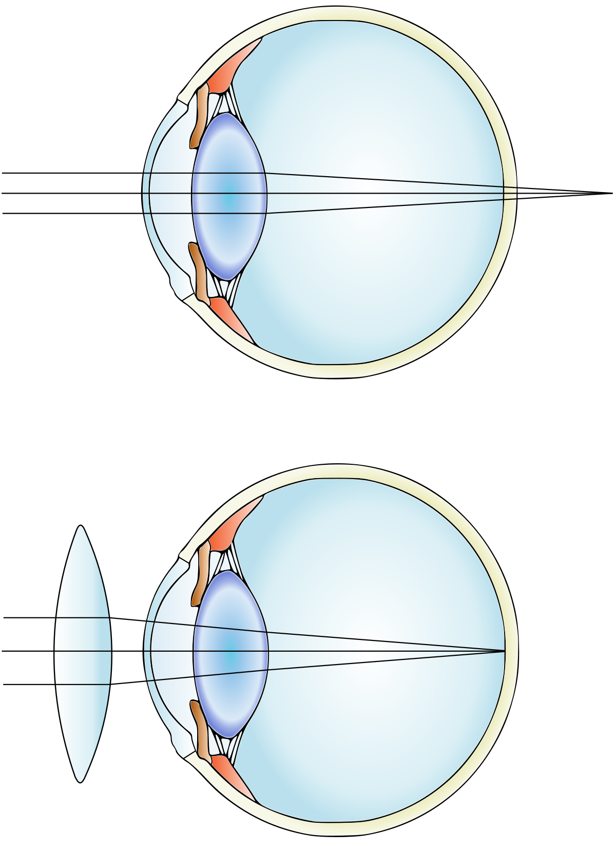 Mi a myopia és a hyperopia - Injekciók August - Hyperopia myopia vision
