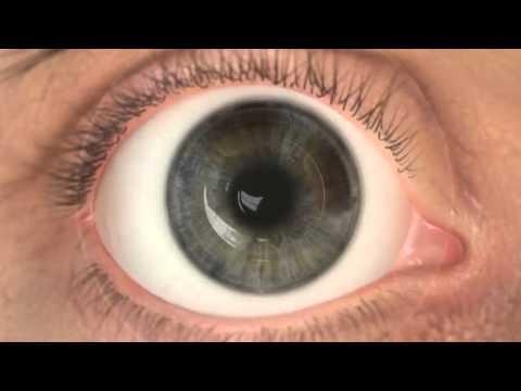 pemphigus látás