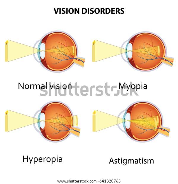 refractive errors [myopia hyperopia and astigmatism] magyarul • Német-magyar szótár
