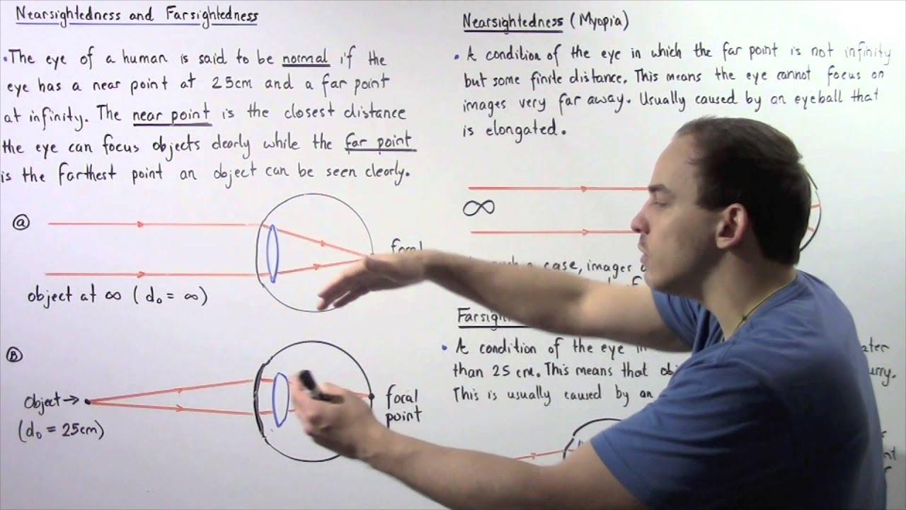 Az életkorral összefüggő hyperopia presbyopia. Hyperopia megelőző kezelés