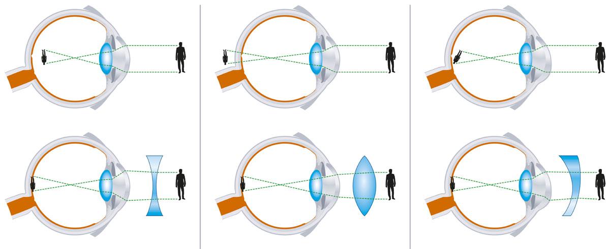 myopia lézer