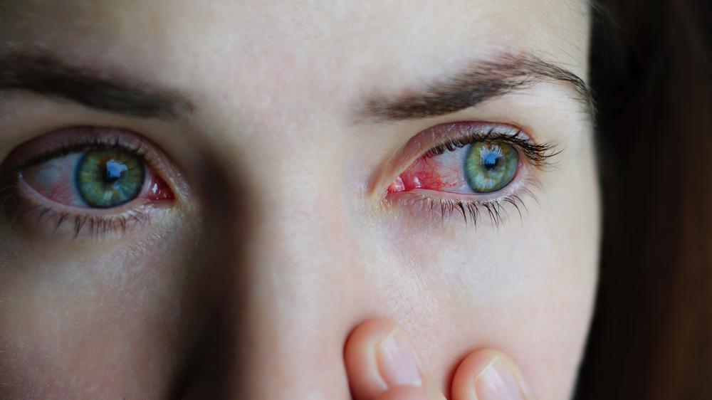 az egyik szem látásromlása kezel