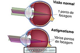 látás asztigmatizmus gyakorlása látásvizsgálat megfejteni