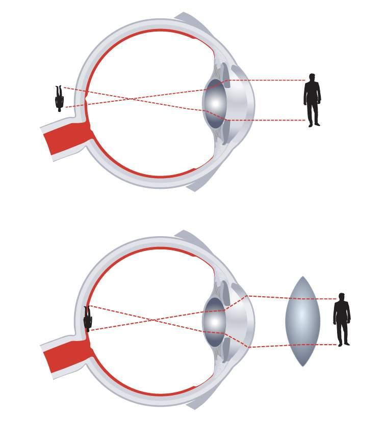 rövidlátás a szem számára