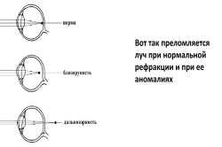 gyakorlatok, amelyek javítják a látást rövidlátással)