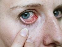 a hiperópia szenilis tanulja meg a látását