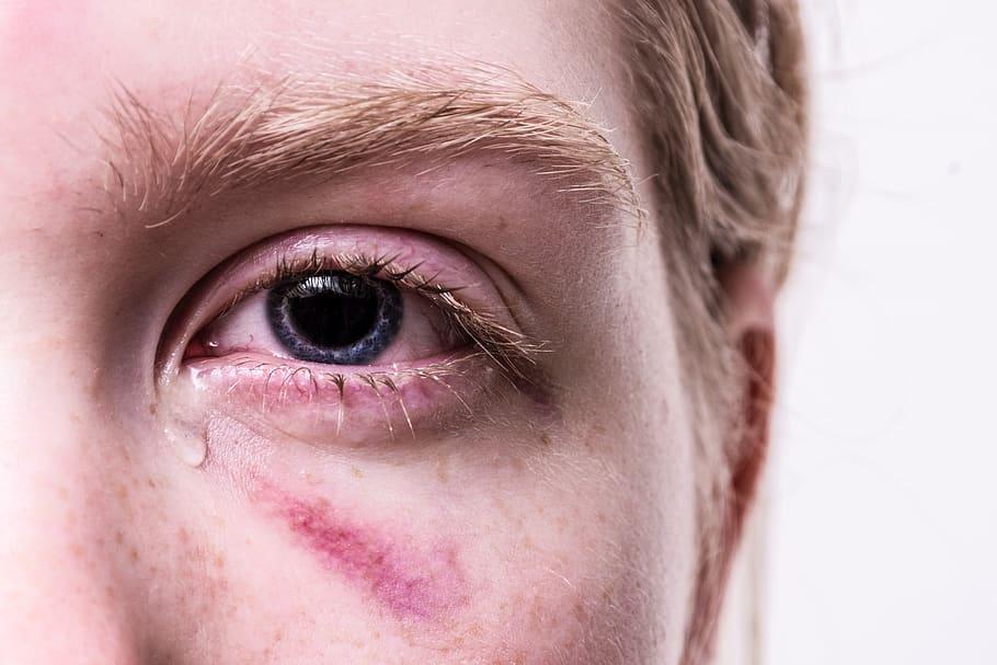 látomás miért két szem