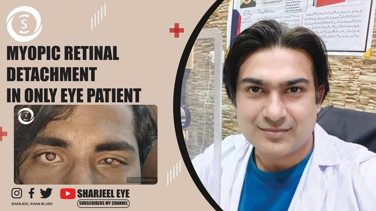 torna a szem rövidlátása számára