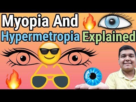 Hyperopia szemgyakorlási videó