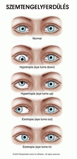 hogyan lehet helyreállítani a jobb szem látását