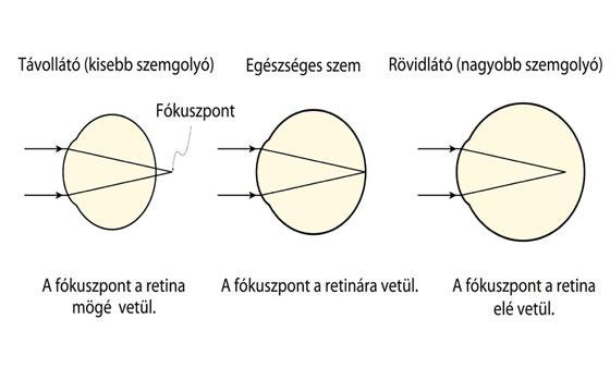 a szem és a látás távollátása)