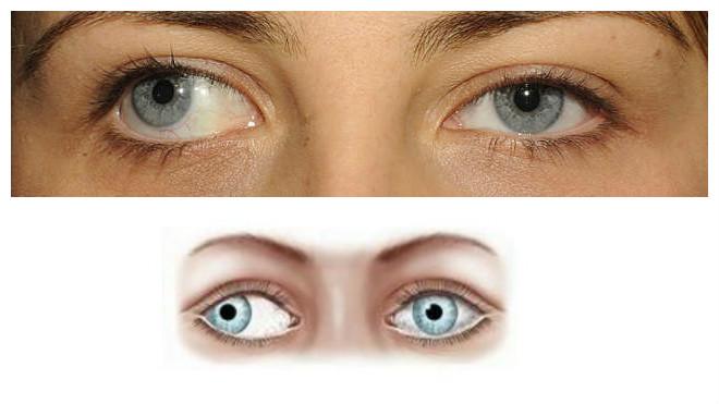 látásbetegségek asztigmatizmus látászavarok és problémák