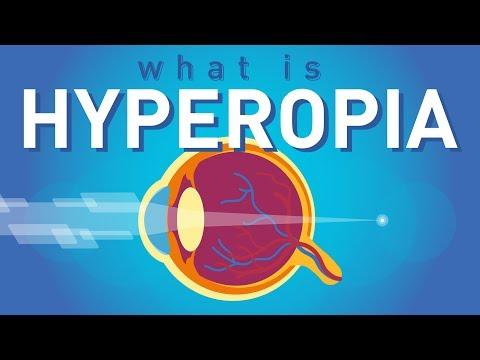 A myopia nem hyperopia, Egy kis anatómia: