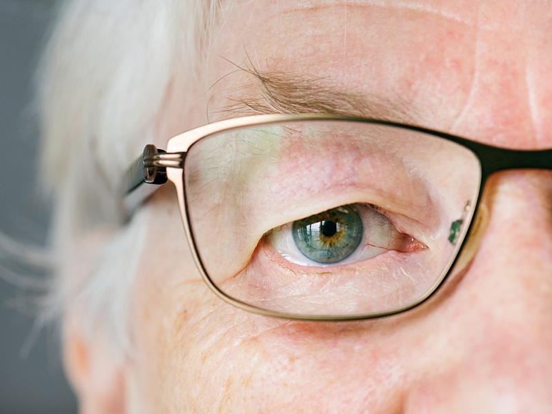 mit isznak a látás javítása érdekében