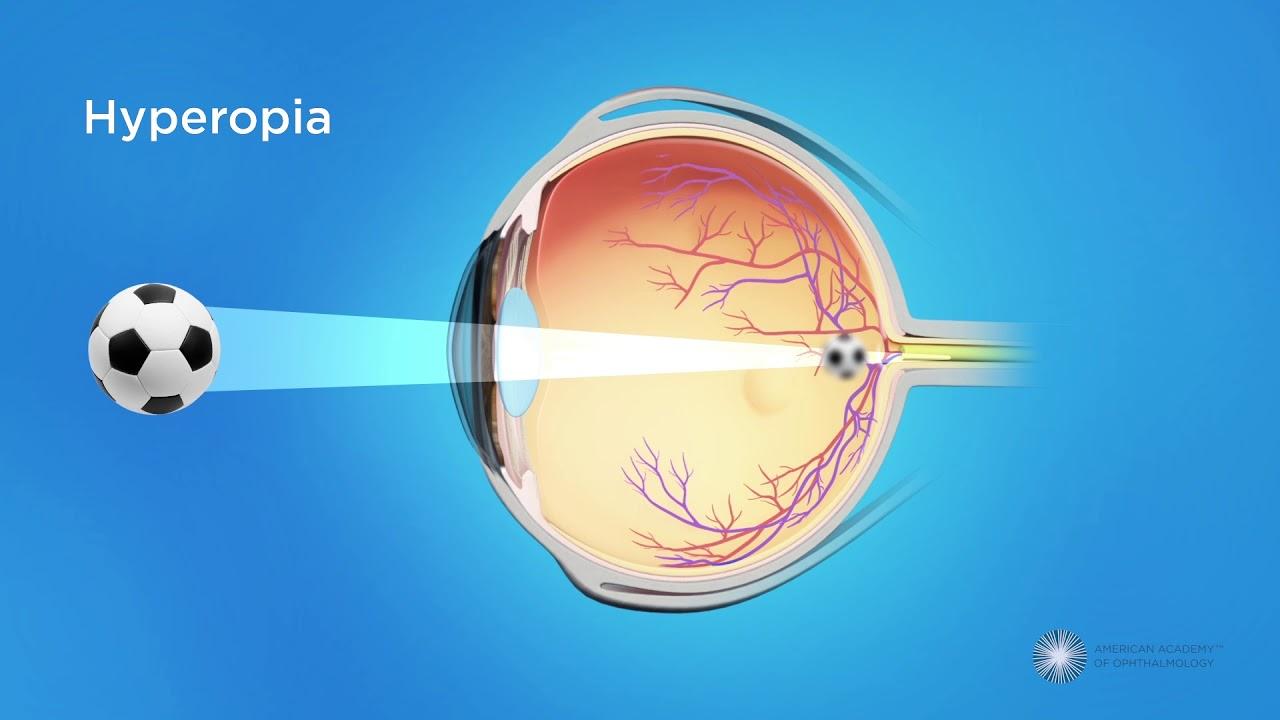 Gyógyítható-e a myopia?