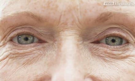 Csak 3 perc naponta és csökkennek a szem alatti táskák: arcjóga a jobb keringésért