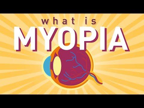 myopia csepp kezelésre