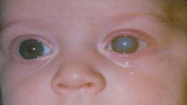 Glaucoma (Zöldhályog) | Szemészeti Klinika
