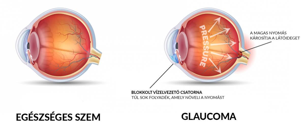 A diabéteszes retinopátia tünetei és kezelése - EgészségKalauz