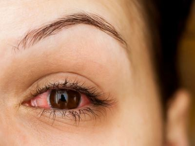 látás és szembetegségek)