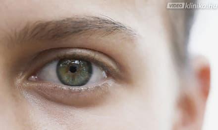 miért javítaná a látást)