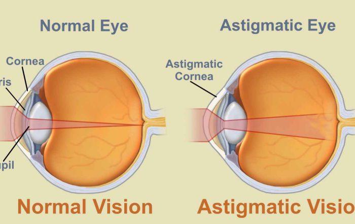 Asztigmatizmus teszt - Rövidlátás September