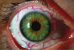 éles látáscsökkenés a bal szemben