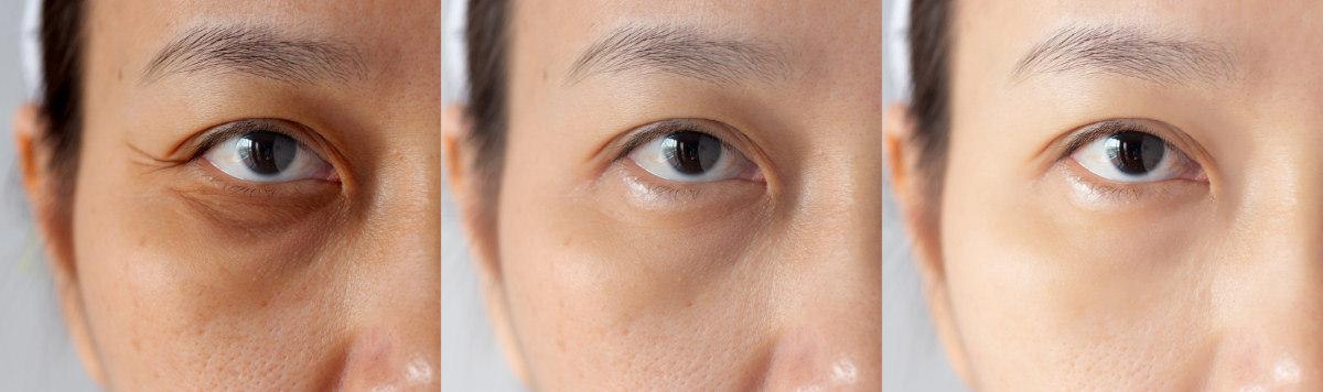 Szimpatika – 10 egyszerű gyógymód duzzadt szemekre