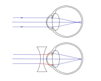 görcs és rövidlátás
